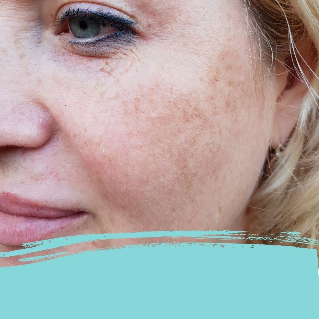 pigment behandeling cadance
